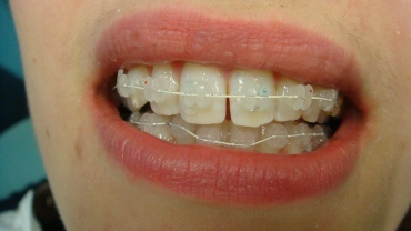 Nearly Invisible Tooth coloured bracket